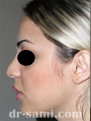 نمونه نمونه کارهای جراحی بینی کد m41