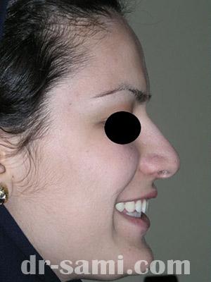 نمونه نمونه کارهای جراحی بینی کد m49