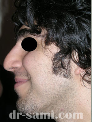 نمونه جراحی زیبایی بینی کد m5
