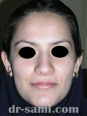 نمونه نمونه کارهای جراحی بینی کد m51
