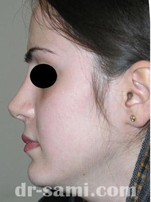 نمونه جراحی زیبایی بینی کد m56