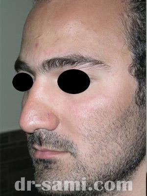 نمونه نمونه کارهای جراحی بینی کد m57