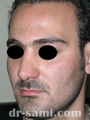 نمونه نمونه کارهای جراحی بینی کد m58