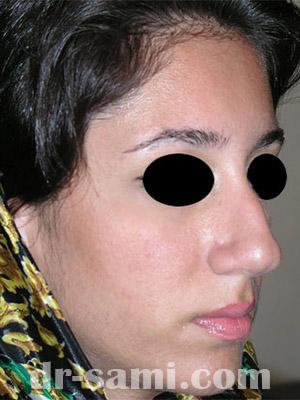 نمونه نمونه کارهای جراحی بینی کد m59