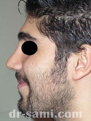 نمونه جراحی زیبایی بینی کد m6