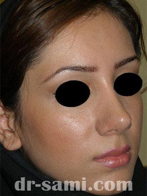 نمونه نمونه کارهای جراحی بینی کد m60