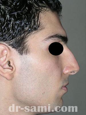 نمونه نمونه کارهای جراحی بینی کد m9