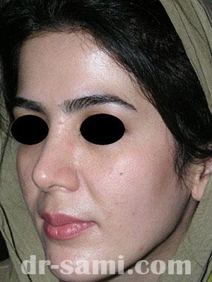 نمونه نمونه کارهای جراحی بینی کد sa10