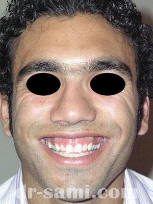 نمونه نمونه کارهای جراحی بینی کد sa11