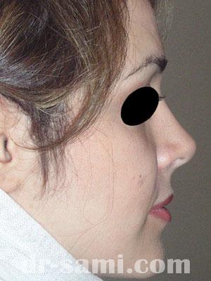 نمونه جراحی زیبایی بینی کد sa14