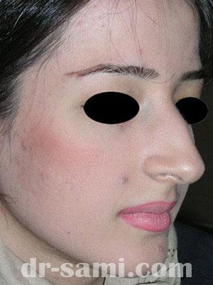 نمونه نمونه کارهای جراحی بینی کد sa17