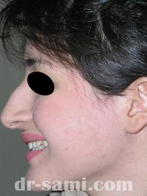 نمونه جراحی زیبایی بینی کد sa19