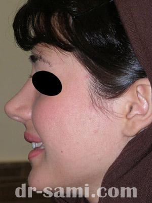 نمونه نمونه کارهای جراحی بینی کد sa20