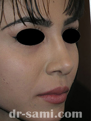 نمونه جراحی زیبایی بینی کد sa26