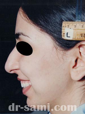 نمونه نمونه کارهای جراحی بینی کد sa27
