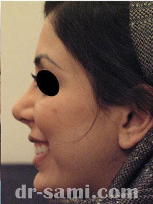نمونه جراحی زیبایی بینی کد sa28
