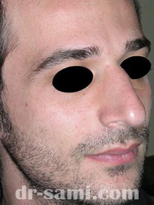 نمونه نمونه کارهای جراحی بینی کد sa3