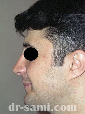 نمونه نمونه کارهای جراحی بینی کد sa40
