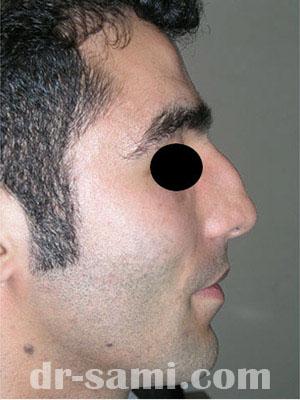 نمونه جراحی زیبایی بینی کد sa43