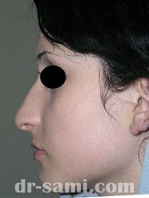 نمونه جراحی زیبایی بینی کد sa49