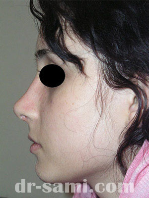نمونه جراحی زیبایی بینی کد sa50