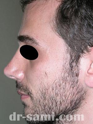 نمونه نمونه کارهای جراحی بینی کد sa8