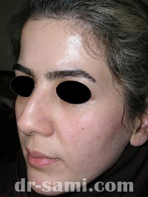 نمونه جراحی زیبایی بینی کد sa9