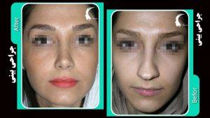 بینی به سبک طبیعی جراحی شده است