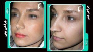 جراحی زیبایی بینی پروجکت