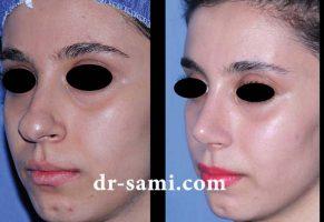 جراحی بینی گوشتی به شکل طبیعی