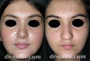 عمل جراحی بینی گوشتی توسط دکتر سامی