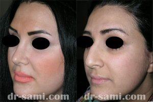 جراحی زیبایی بینی و برداشتن قوز