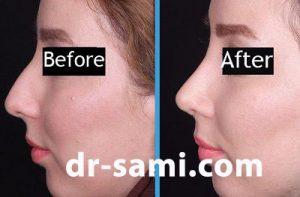 جراحی رینوپلاستی توسط دکتر سامی