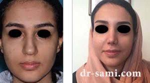 کوچک کردن سایز بینی متناسب با صورت