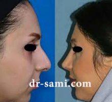 جراحی زیبایی بینی متناسب با فرم صورت