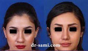 جراحی بینی رینوپلاستی