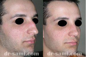 جراحی بینی استخوانی توسط دکتر سامی
