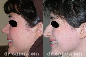 جراحی زیبایی بینی توسط دکتر سامی