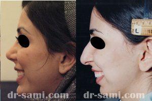 جراحی زیبایی بینی و رفع افتادگی بینی
