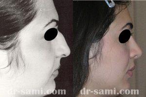جراحی زیبایی بینی و برطرف شدن قوز بینی