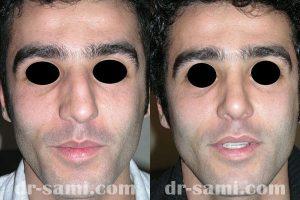 جراحی زیبایی بینی و اصلاح انحراف بینی