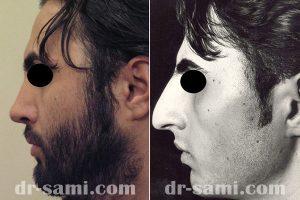 جراحی زیبایی بینی استخوانی