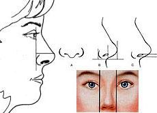 جراحی بینی دکترسامی