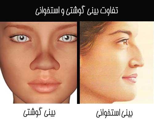 فرق بینی گوشتی و استخوانی