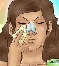 دوران نقاهت بعد از عمل بینی