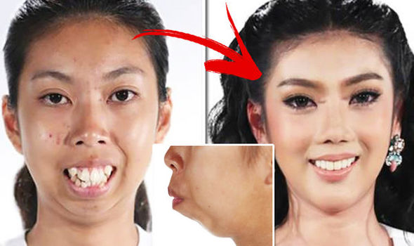 جراحی پلاستیک چگونه انجام میشود