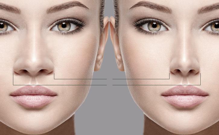 برای کاهش ورم بینی بعد از عمل چه باید کرد