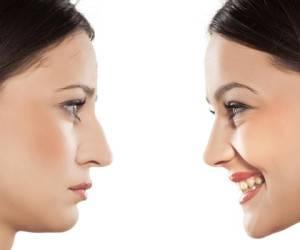 مقایسه جراحی زیبایی بینی