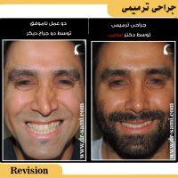 عمل ترمیمی بینی توسط دکتر سامی