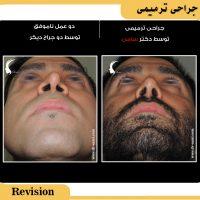 عمل بینی ترمیمی توسط دکتر سامی - بهترین جراح بینی ترمیمی ایران